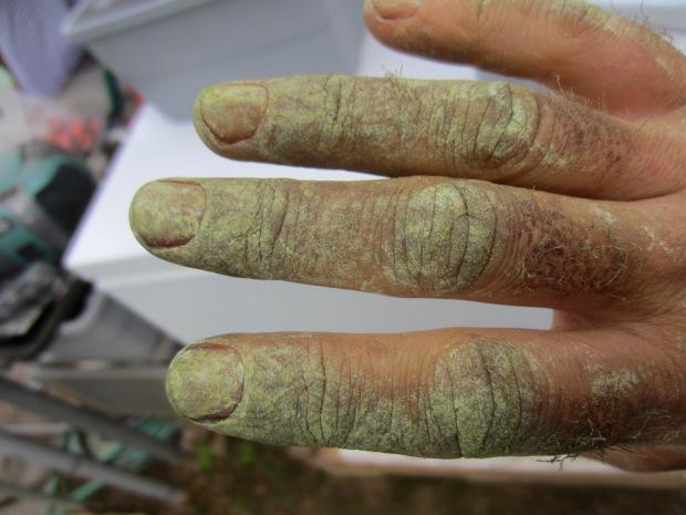 tomato pickin' hands
